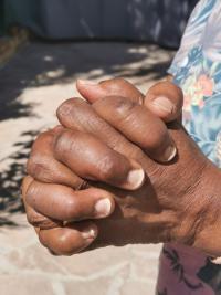 Soulager les douleurs inflammatoires : les conseils de votre ostéopathe